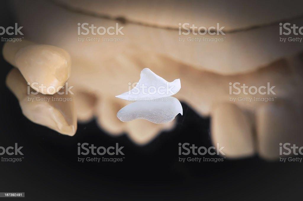 Micro Prepless Veneer stock photo
