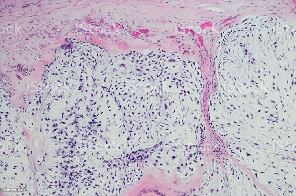 Micrograph of Chondrosarcoma. stock photo