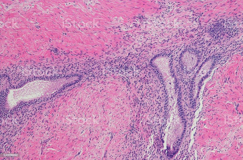 Micrograph of endometriosis stock photo