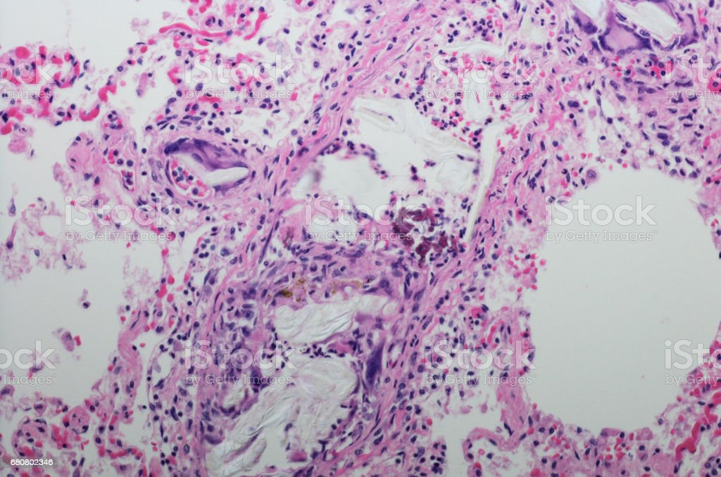Micrograph of foreign body emboli stock photo