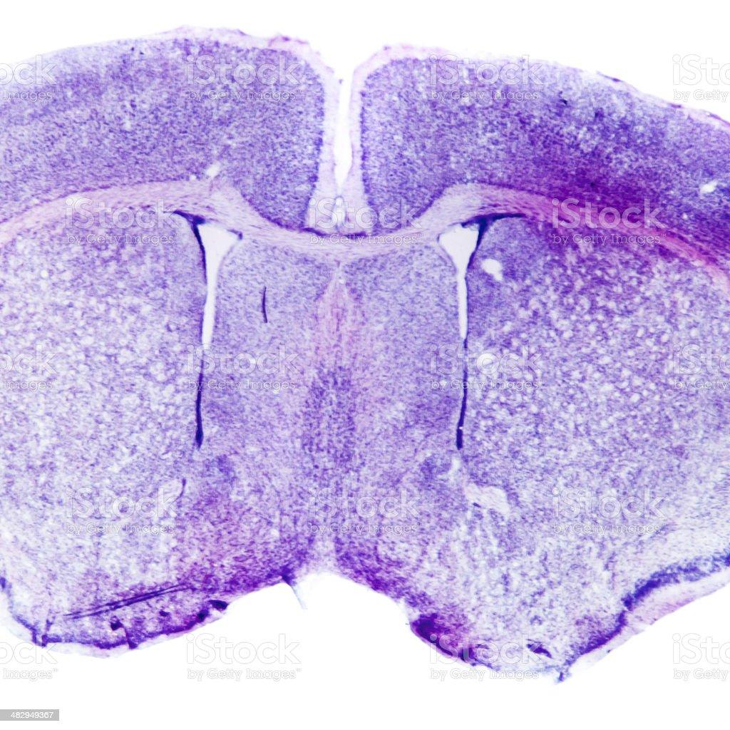 Micrograph of rat brain stock photo