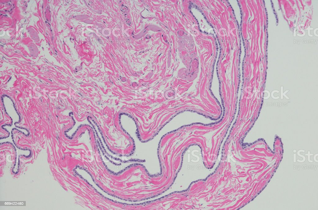 Micrograph of spermatocele and epididymal cyst. stock photo