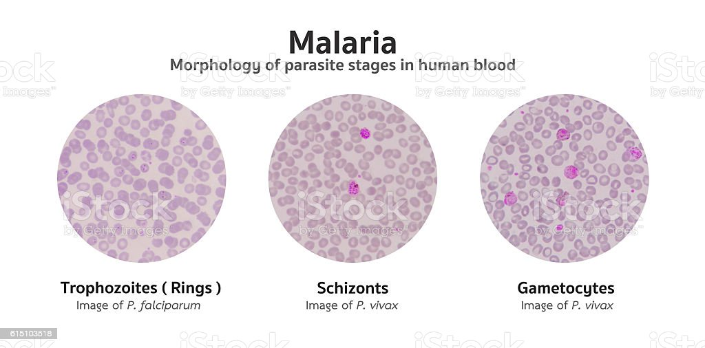 Microscopic examination of blood films from malaria infected pat stock photo