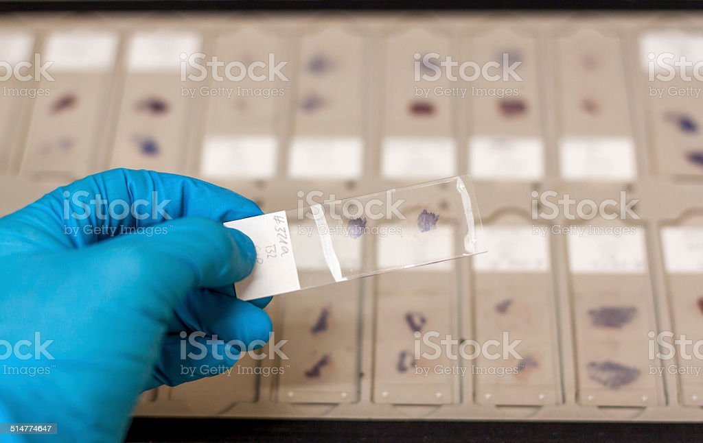 Microscopic research samples stock photo