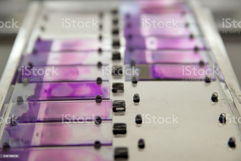 Microscopic slides with blood samples stock photo