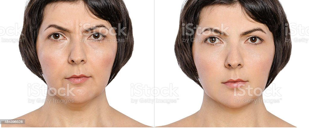 Middle aged woman before and after anti-age therapy, botox, lifting. stock photo