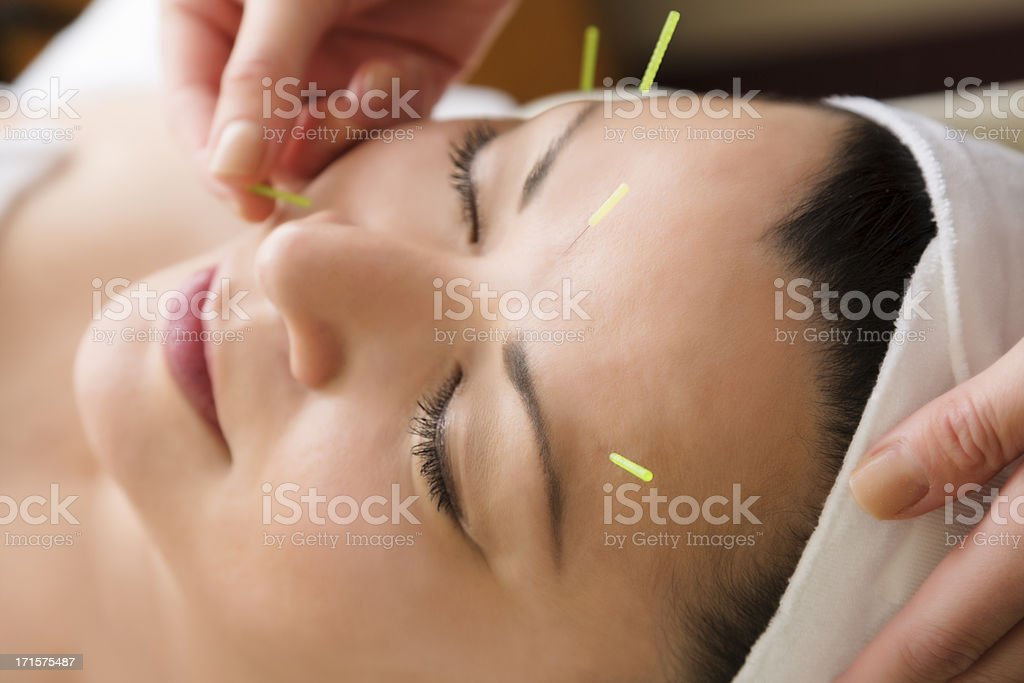 Middle aged woman getting acupuncture treatment at the spa stock photo