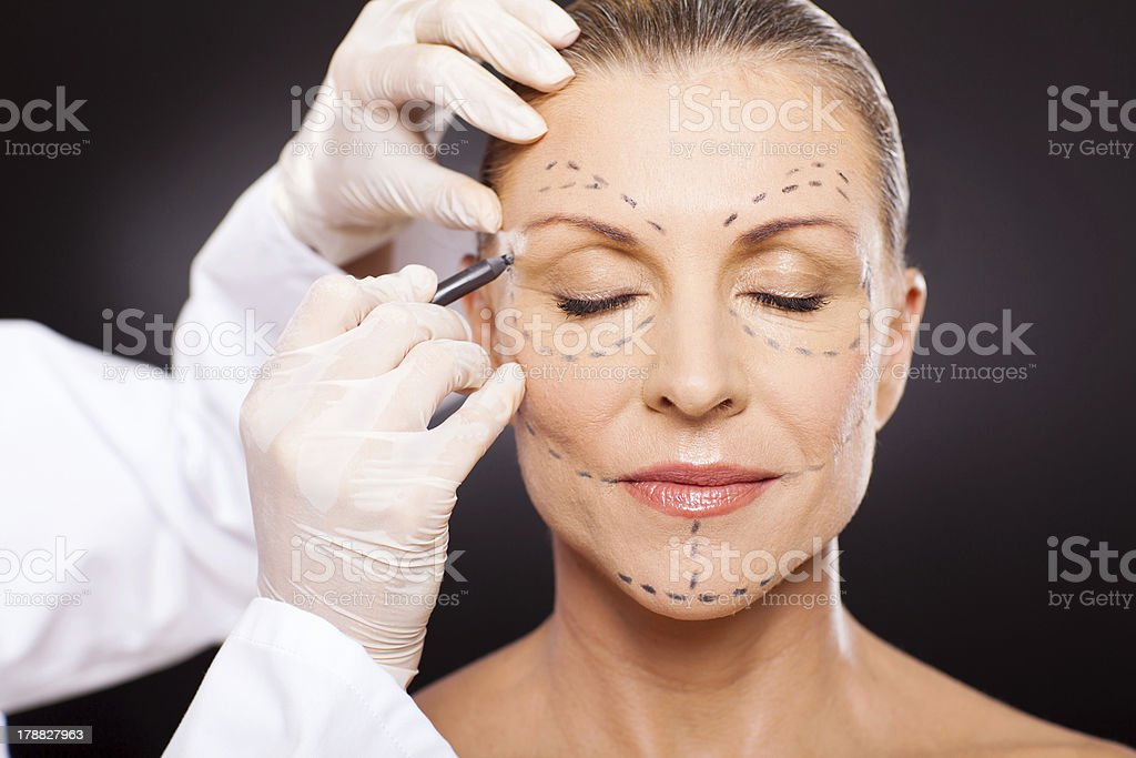 middle aged woman preparing for plastic surgery stock photo
