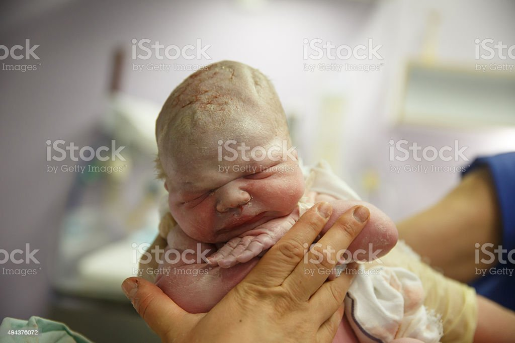 Midwife holding up a vernix covered newborn stock photo