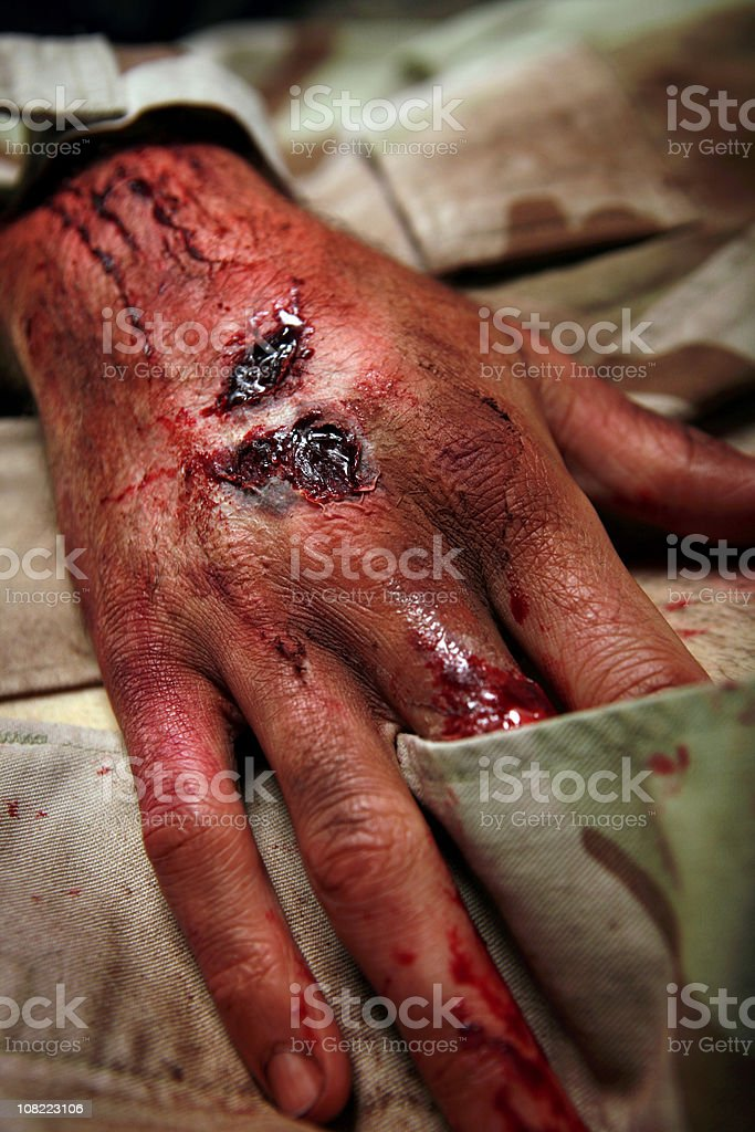 Military Man With Burns And Lesions stock photo