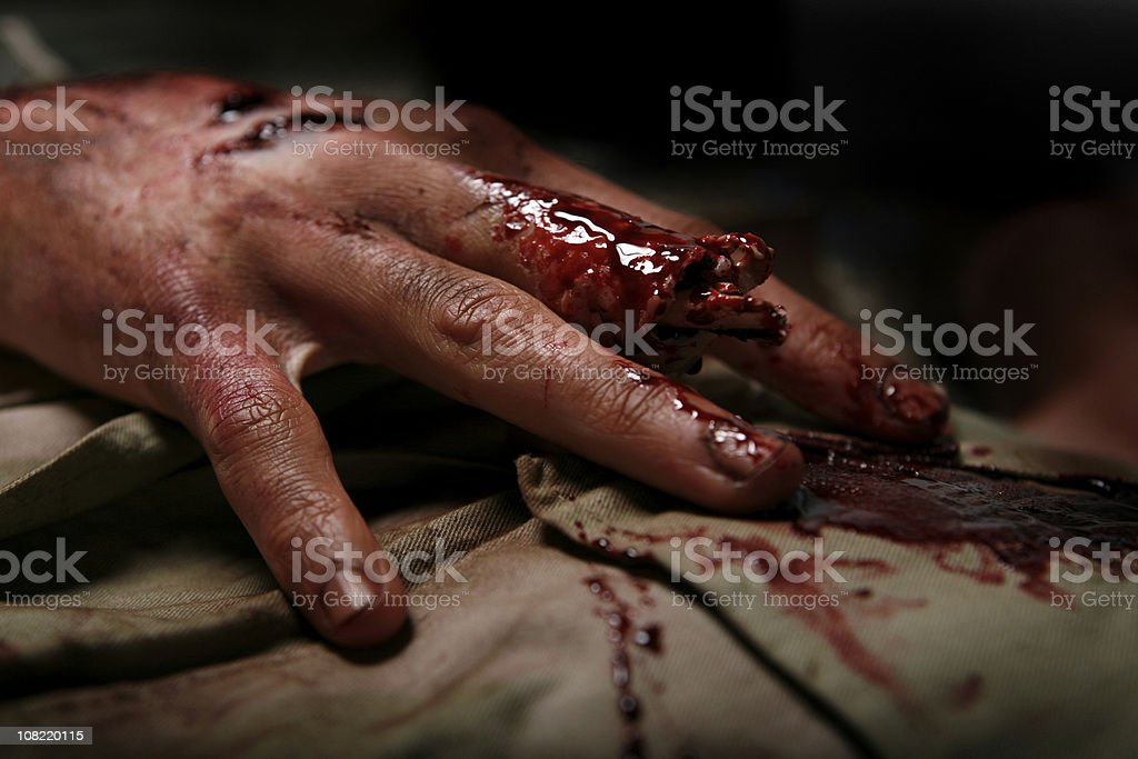 Military Man With Severed Finger royalty-free stock photo