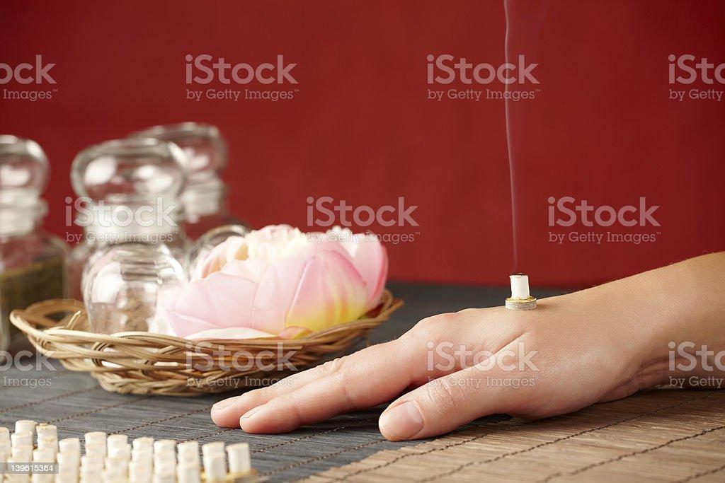 Mini moxa stick therapy stock photo