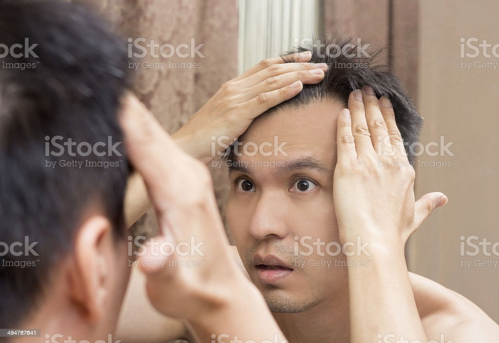 Mirror reflection of asian handsome man viewing his scalp stock photo