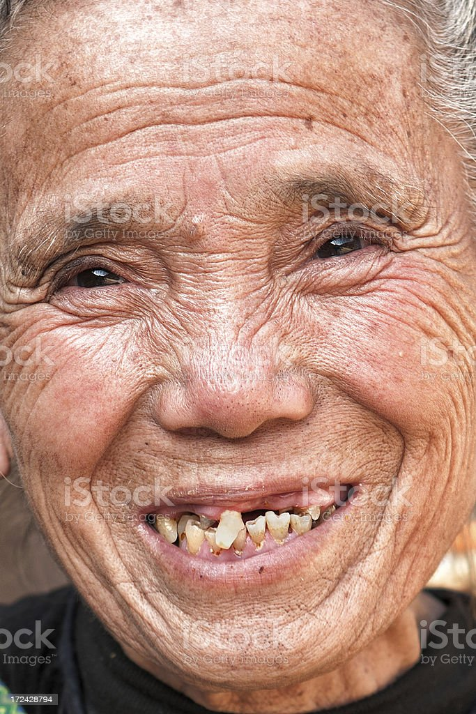 Missing teeth stock photo