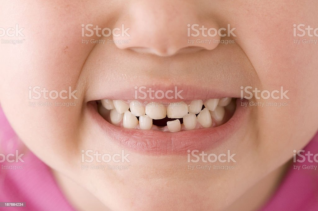 Missing Tooth Smile stock photo