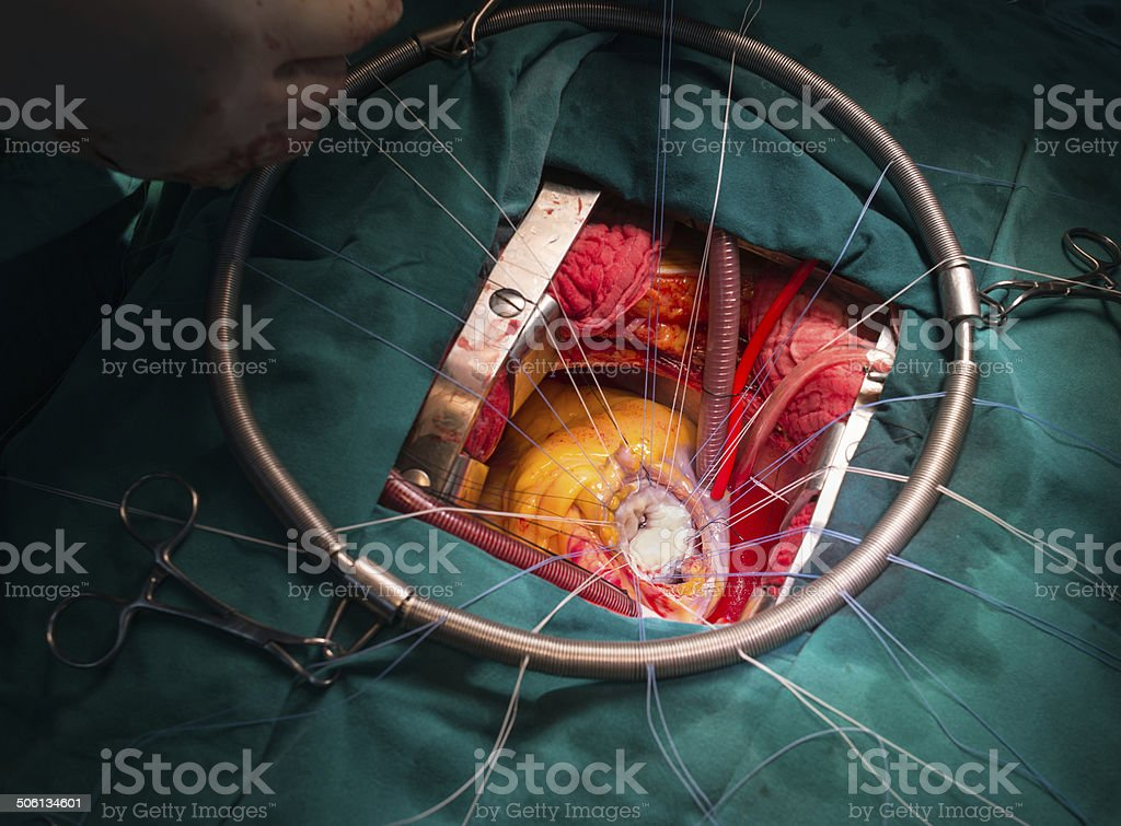 mitral valve after repair stock photo