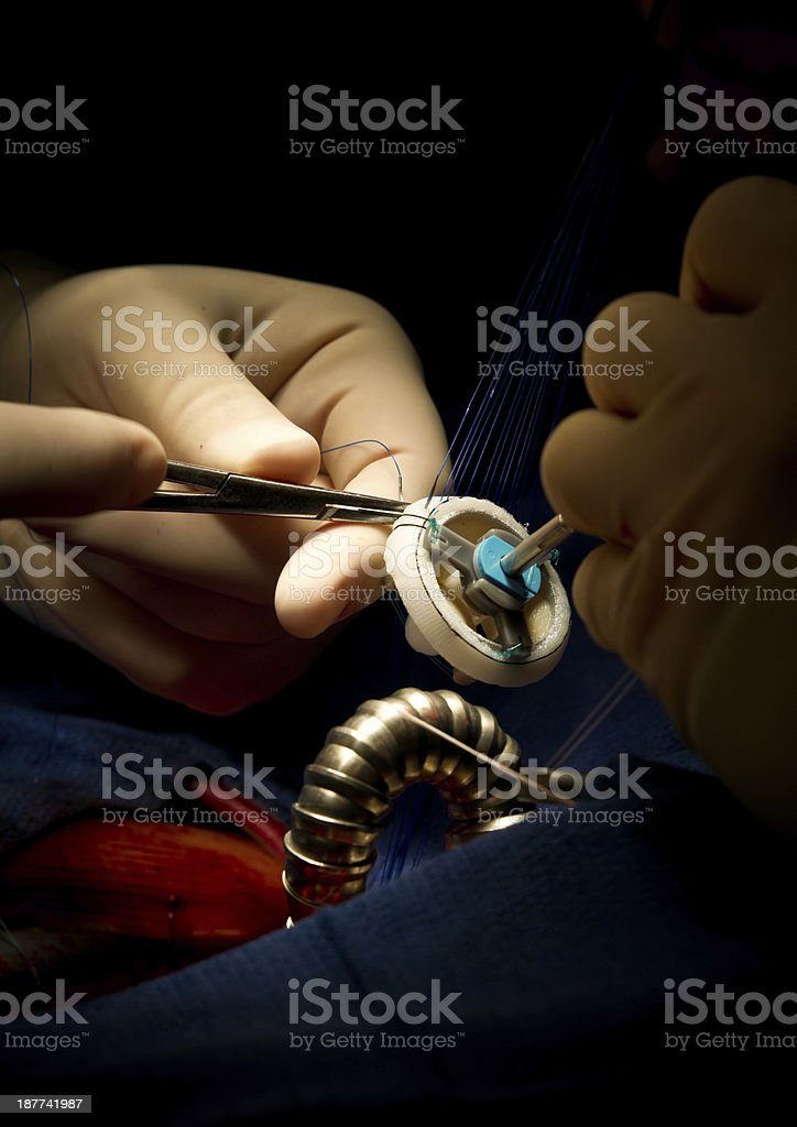 Mitral Valve Replacement Heart Surgery stock photo