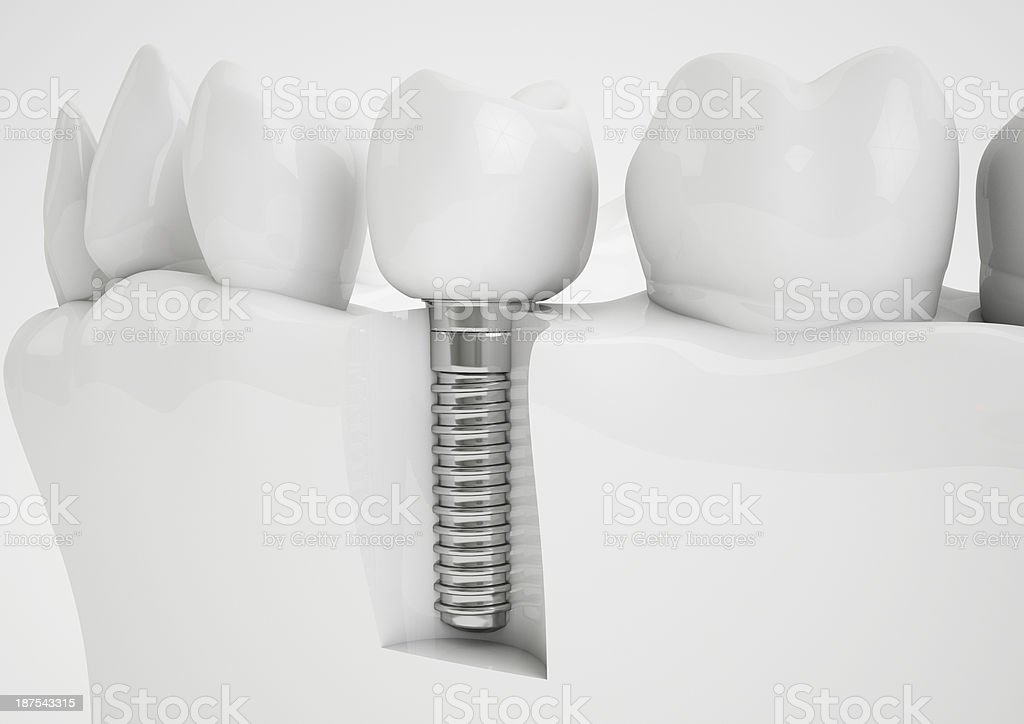 A model demonstrating how dental implants are secured stock photo