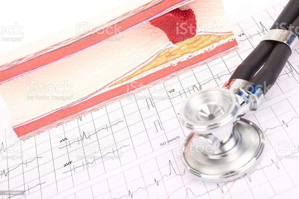 Model of arteriosclerosis, ecg and stethoscope royalty-free stock photo