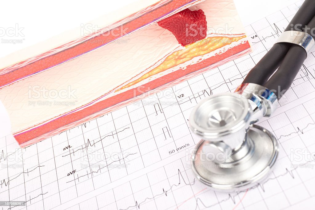 Model of arteriosclerosis, ecg and stethoscope stock photo