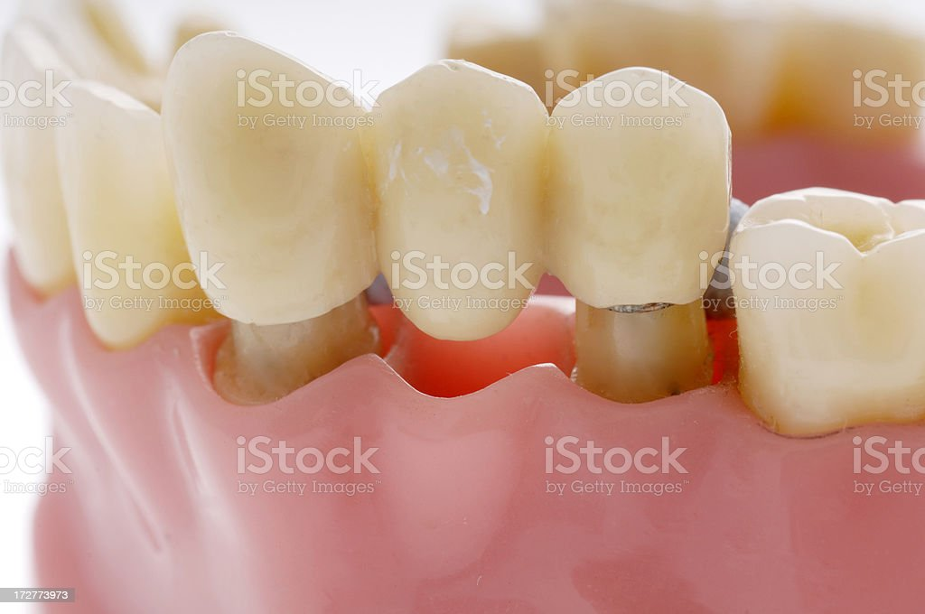 model of dental bridge used to replace missing tooth stock photo