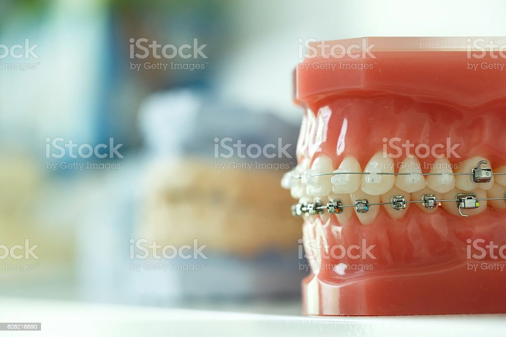 Model of human jaw with wire braces attached stock photo