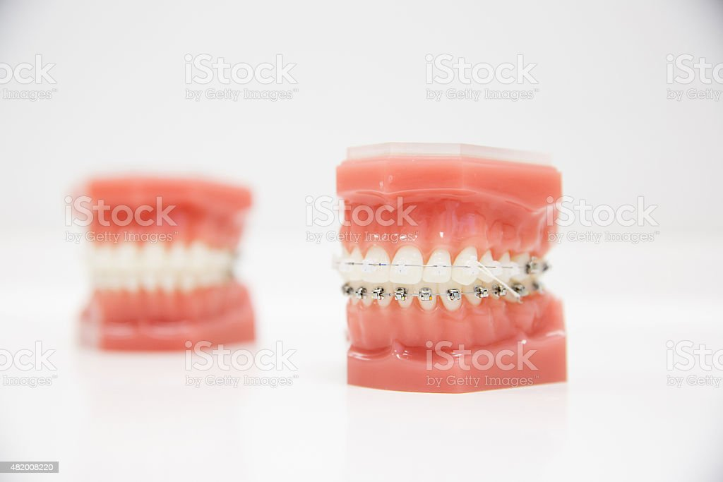 Model of human jaw with wire braces stock photo