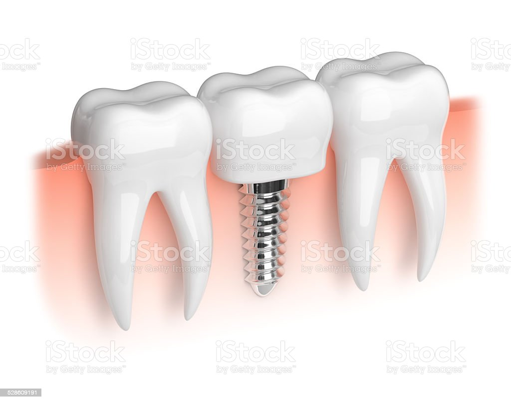 Model of teeth and dental implant stock photo
