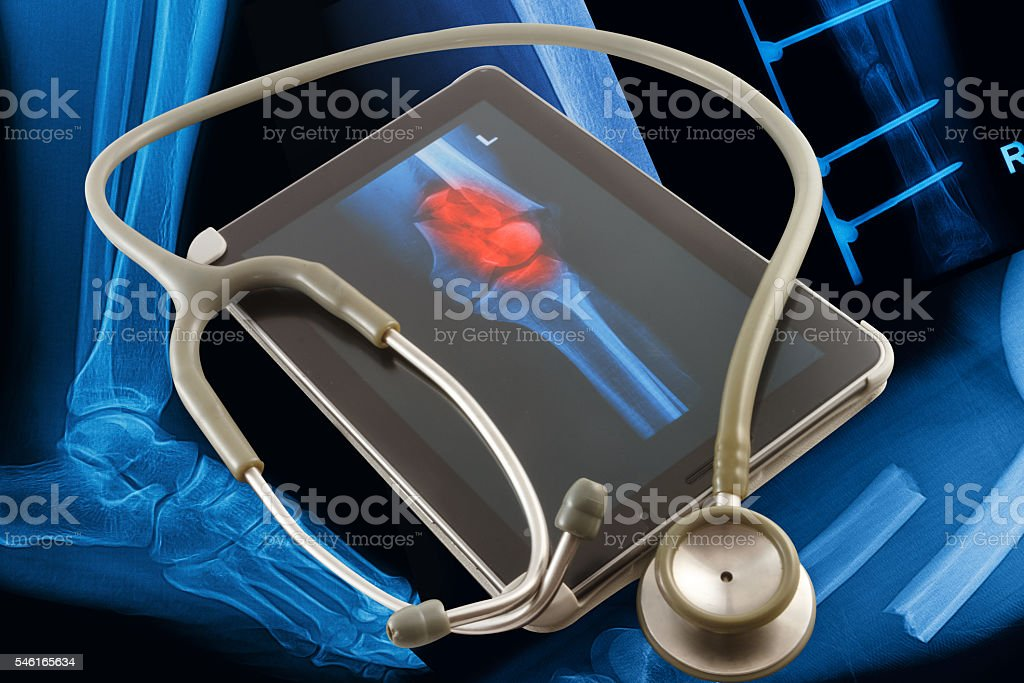 Modern medical tablet on x-rays images background stock photo