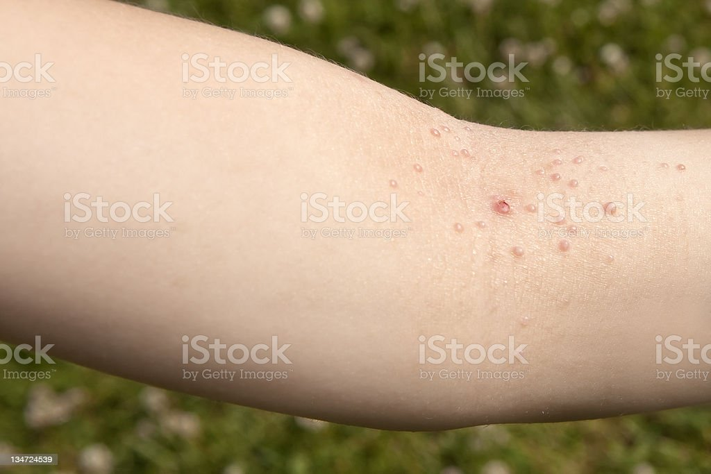 Molluscum contagiosum (MC) stock photo