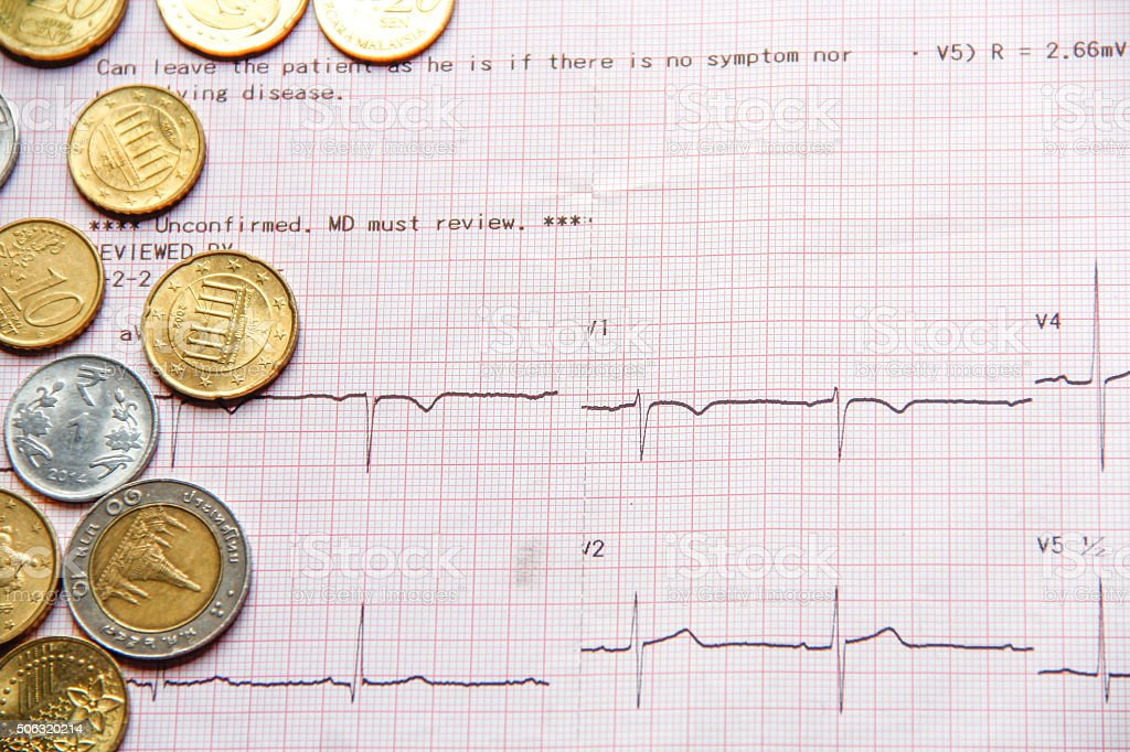 Money on Cardiogram report stock photo