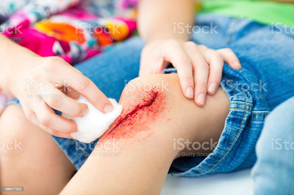 Mother Cleaning sons Wound. royalty-free stock photo
