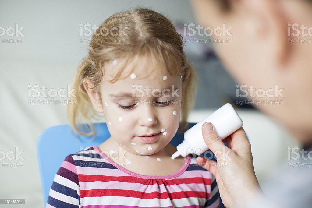 Mother Nursing Child With Chickenpox. stock photo