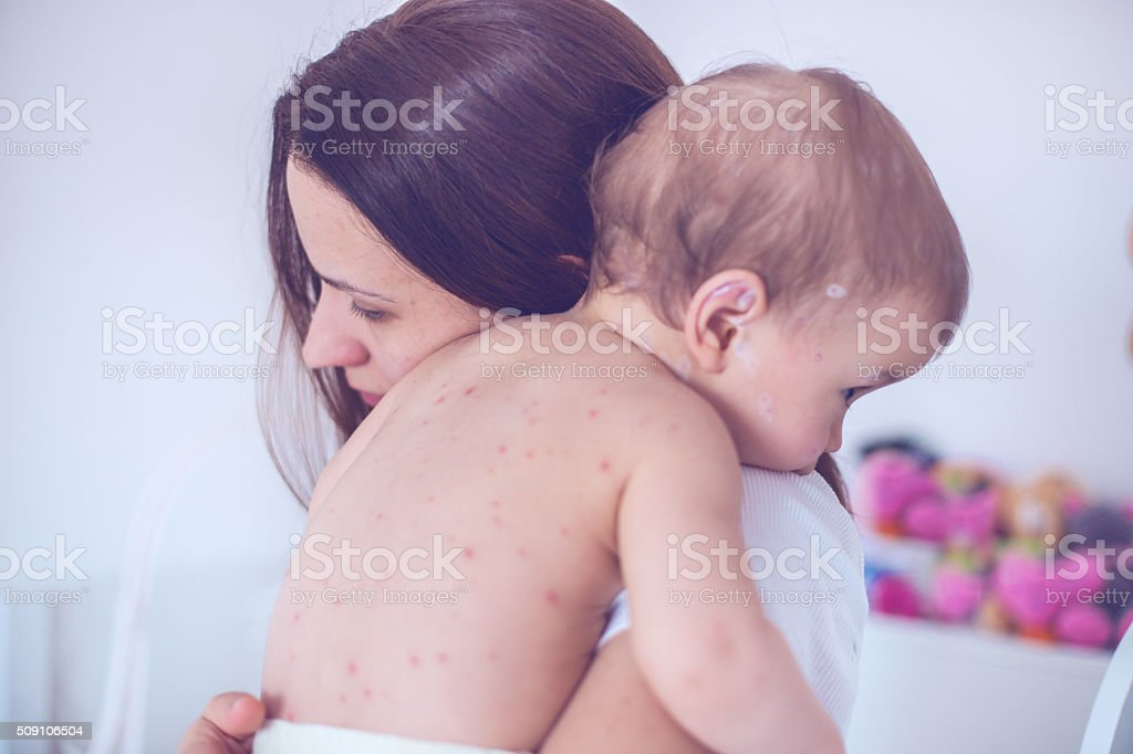 Mother taking care of baby with chicken pox stock photo