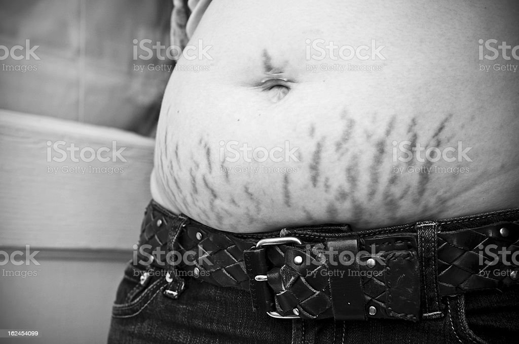Mother's stretch marks from pregnancy stock photo