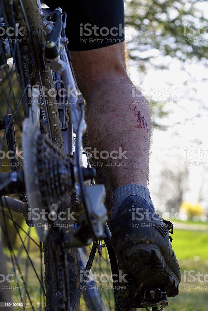 Mountain Biking Injury royalty-free stock photo