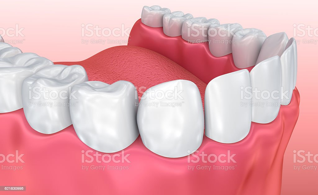 Mouth gum and teeth. Medically accurate tooth 3D illustration vector art illustration