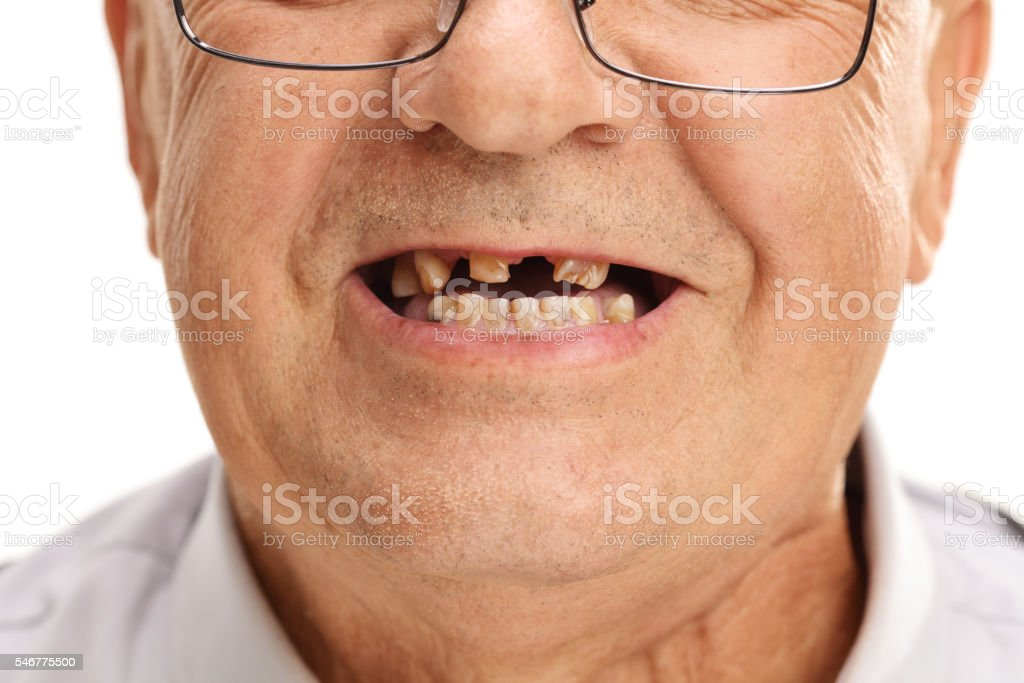Mouth of a senior with broken teeth stock photo