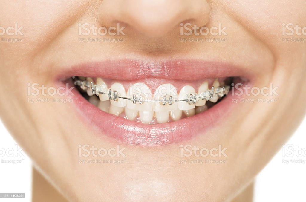 Mouth with brackets stock photo