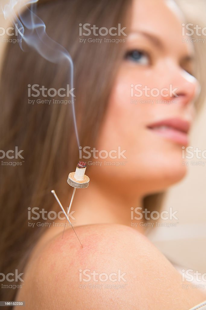 moxibustion acupunture needles heat on woman stock photo