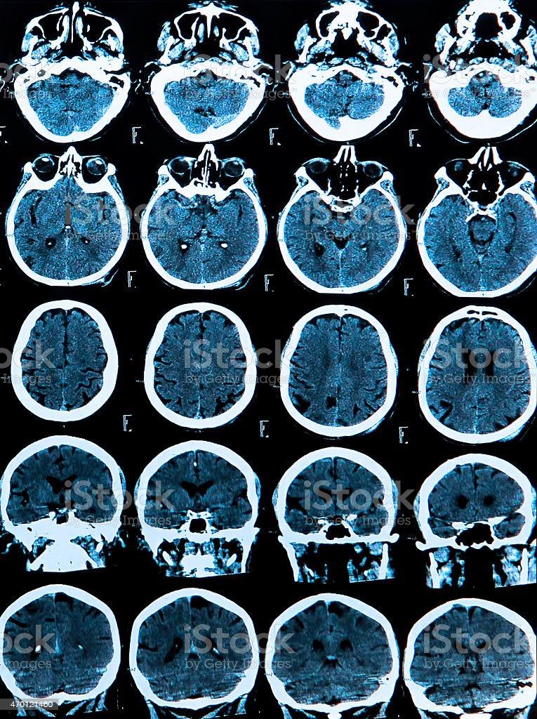 Mri Brain Scan stock photo