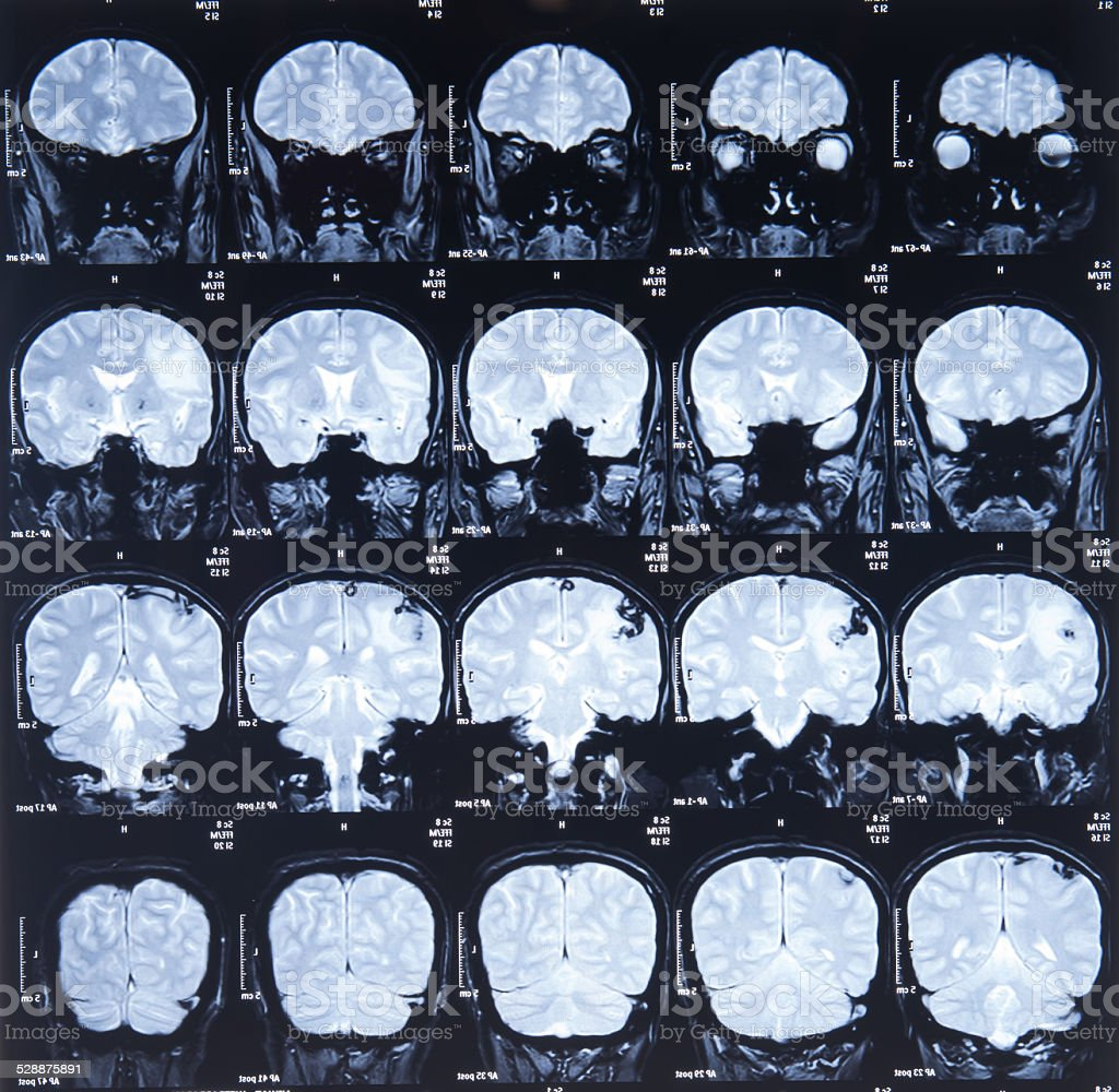 mri scan image stock photo
