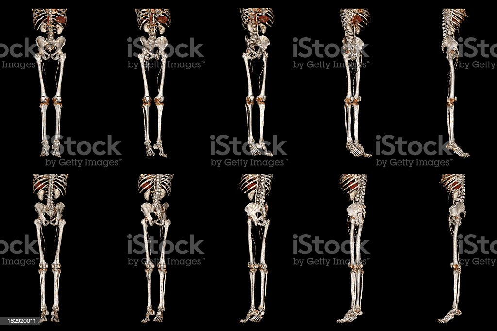 Multi–Detector CT Angiography of Lower Extremity stock photo