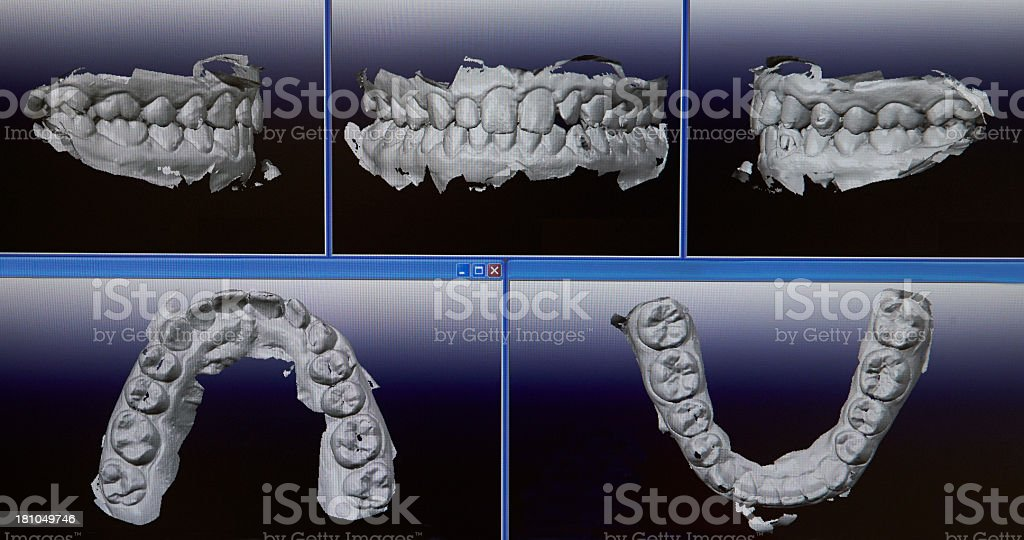 Multiple Dental Impressions royalty-free stock photo