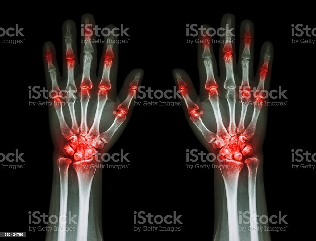 multiple joint arthritis both hands ( Gout , Rheumatoid ) stock photo