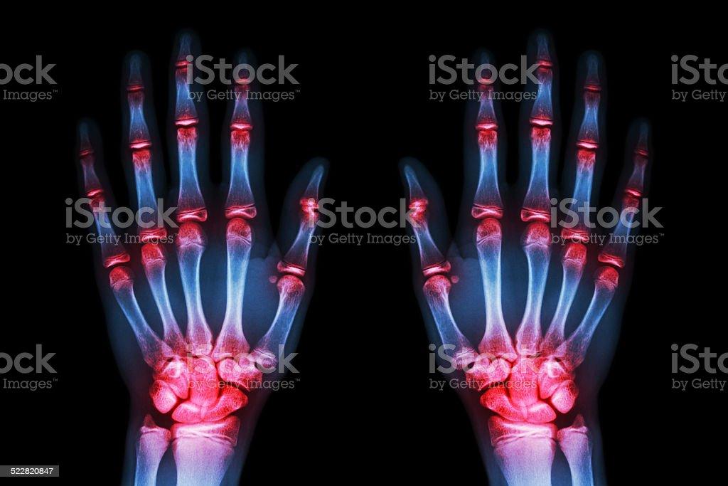 multiple joint arthritis both hands( Gout , Rheumatoid )on black background stock photo