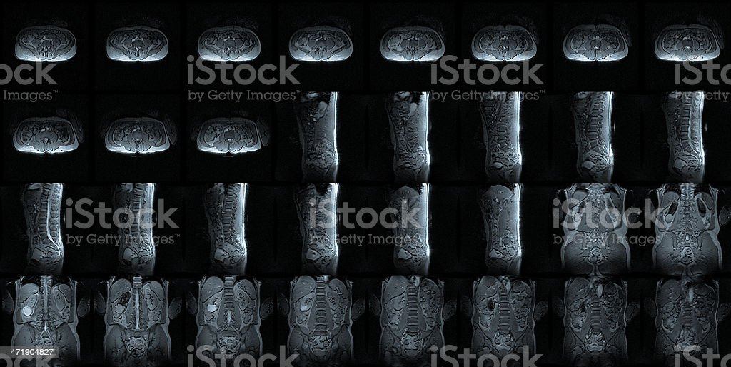 MRI multiple perspective mosaic of lower spinal column ( lumbar spine ) stock photo