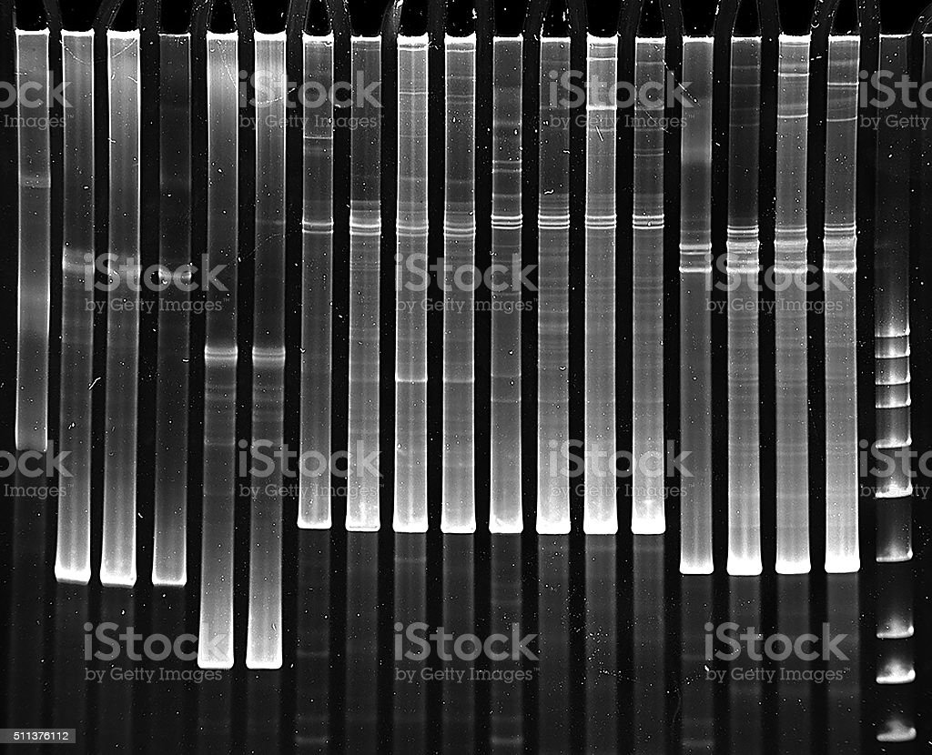 Mutation screening in polyacrylamide gel stock photo