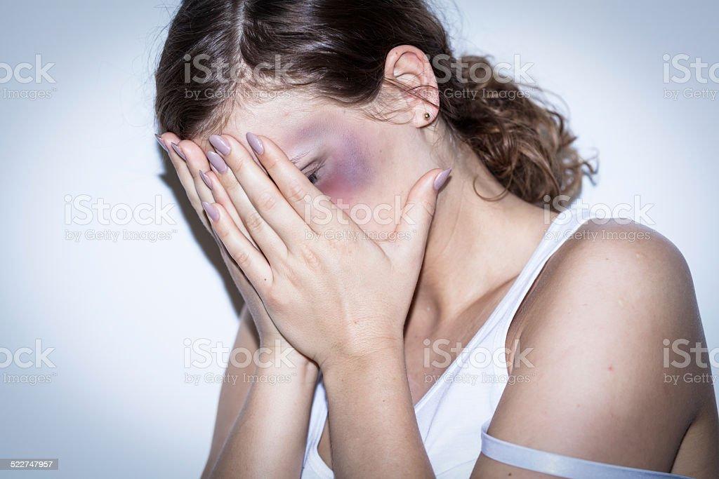 Mutilated women stock photo