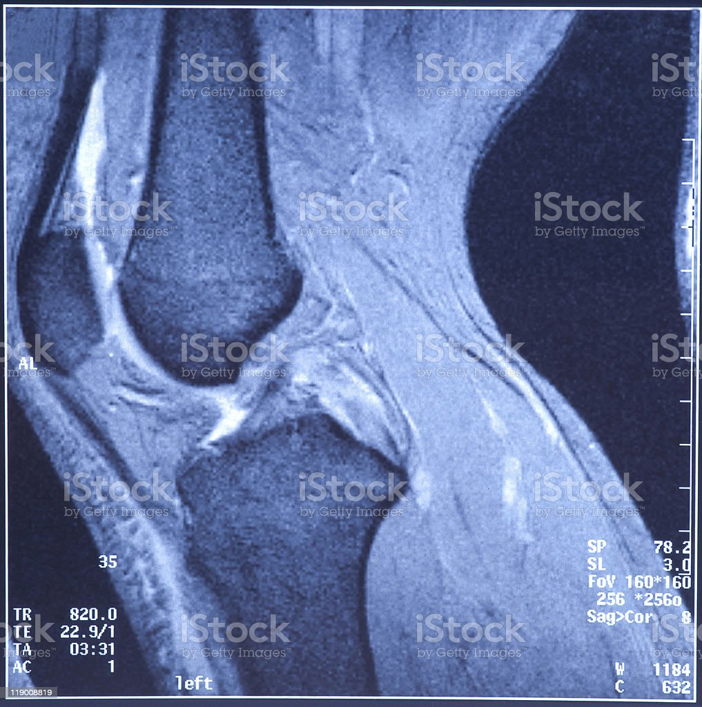 My knee MRI -  damage of cross-shaped ligaments royalty-free stock photo